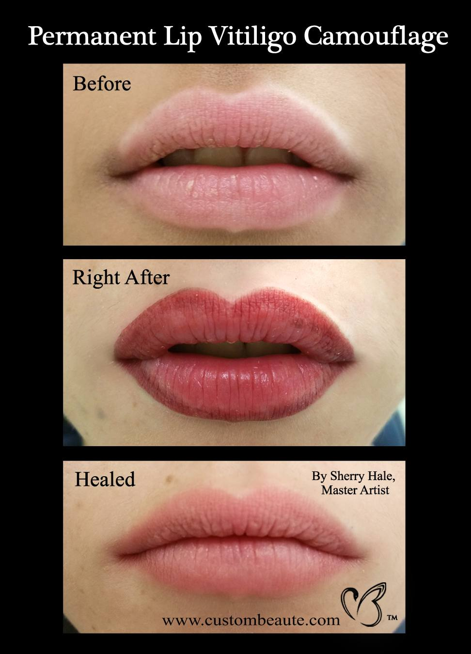 Permanent Lip Vitiligo Camouflage - Microblading